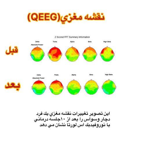 نقشه مغزي (QEEG )
